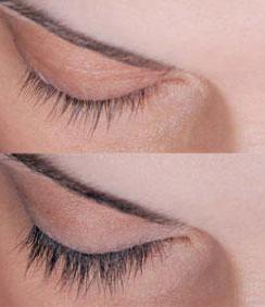 latisse for thickening of eyebrows