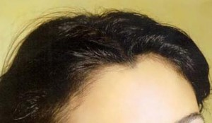 female hairline