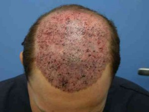 bleeding after hair transplant