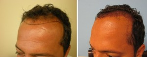 first-few-days-after-hair-transplant