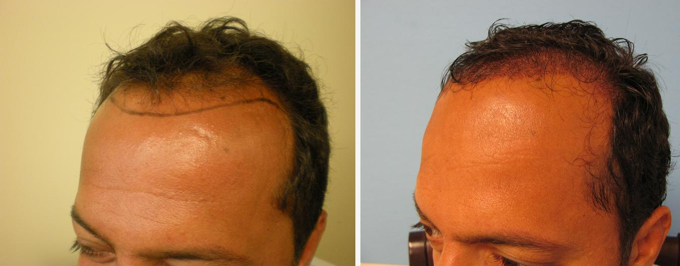 US Hair Transplant » men hair restoration