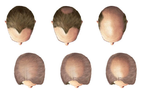 Treatment male pattern baldness