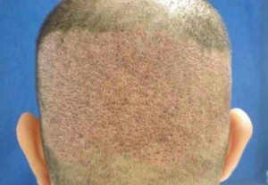 Follicular Unit Extraction - FUE transplant