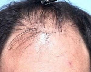Plug old hair transplant