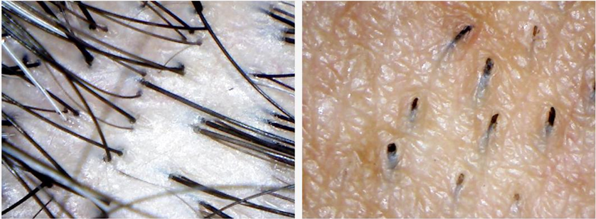 Microscopic View of Scalp hair and Facial Hair
