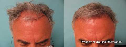 Restored Hair Line by Dr. Parsa Mohebi