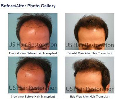 Proven, Permanent, Natural Hair Transplant with Parsa Mohebi, MD
