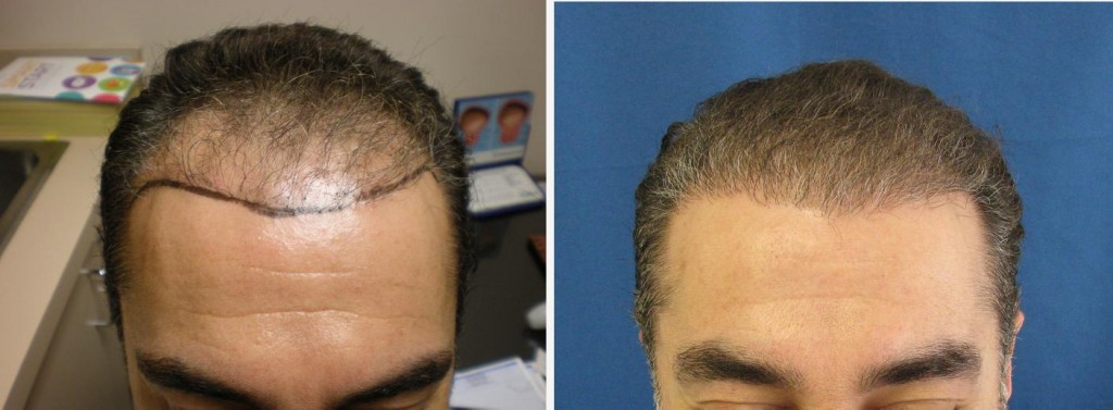 Before & After Successful Hair Restoration
