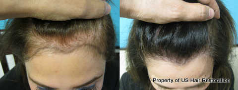 Parsa Mohebi, MD successfully restores female hairline.