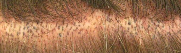 Scar Revision with FUE at Los Angeles Hair Transplant centers