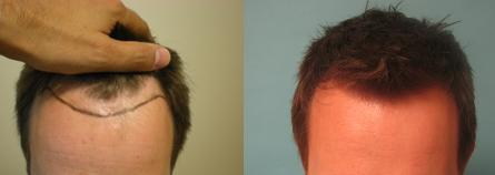 Improved Hairline with FU Transplanted