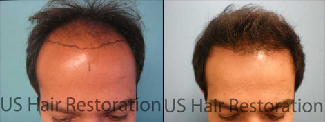 US Hair Restoration provides innovative advances for hair loss.