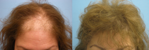 Female Hair Restoration by Doctor Parsa Mohebi