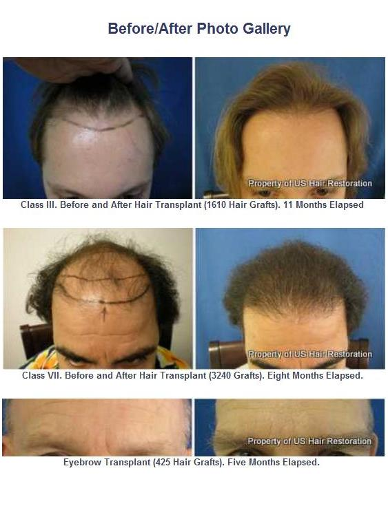 Hair transplant before and after pictures