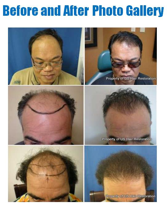 ... Photos - Celebrity Hair Transplants Before And After Hair Loss Forum